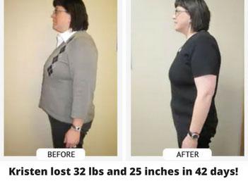 ChiroThin Weight Loss Success
