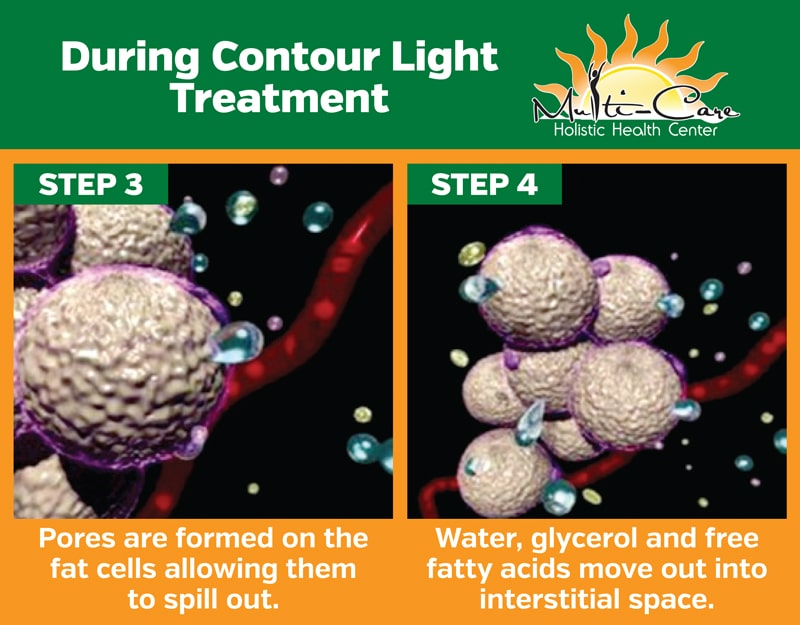 Contour Light Therapy